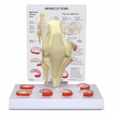 膝半月板損傷モデル