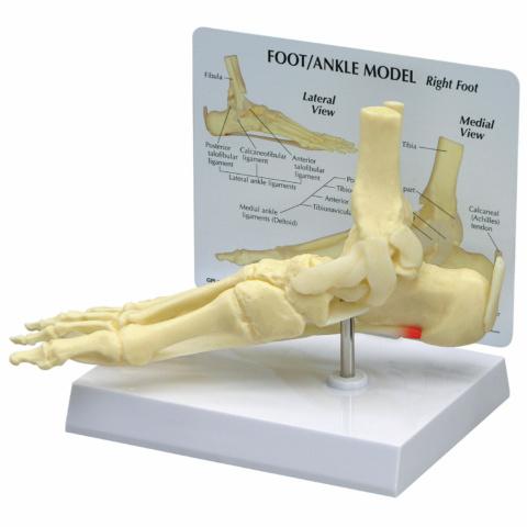 足底筋膜炎モデル
