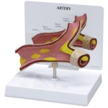 動脈硬化モデル
