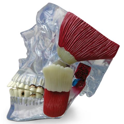 顎関節(TMJ)モデル