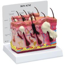 ニキビ皮膚モデル