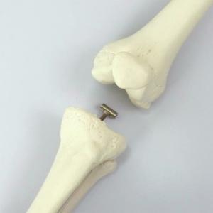 大腿・下腿の取り外し
