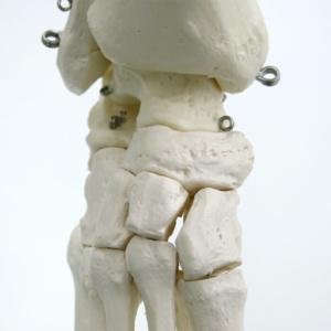 各足根骨関節面に対するX線の照射角度等もわかりやすく検証が可能です