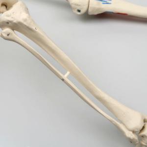 脛骨・腓骨:右