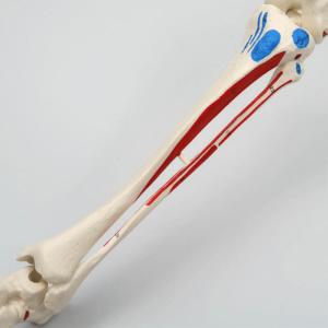 脛骨・腓骨:左