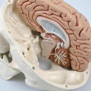 左脳を取り外した状態