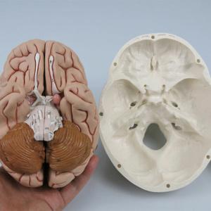 脳を取り外した状態