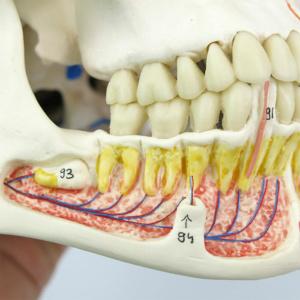 右側の下顎:血管の分布を表示