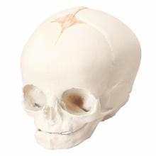 胎児の頭蓋モデル