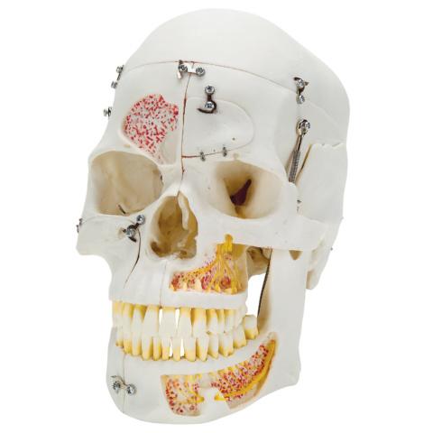 頭蓋,10分解デラックスモデル
