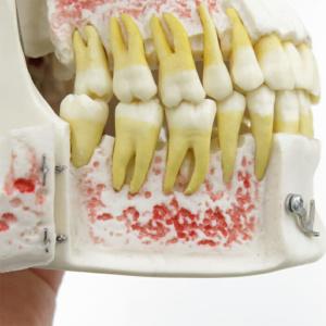 下顎内部:右下顎