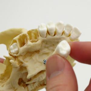 歯牙32本は個別に成型,抜歯も可能