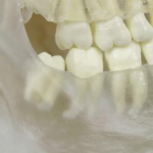 歯根部を確認できます