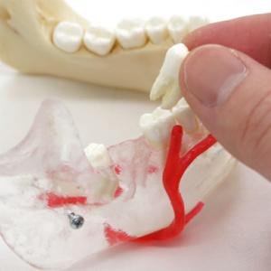 歯は上下32本,全て抜歯可能