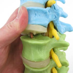 椎体の中に銅線が通っています