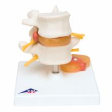 椎間板ヘルニア腰椎モデル