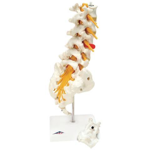 腰椎モデル(ヘルニア付)