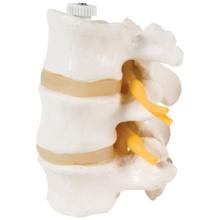 3交連腰椎モデル