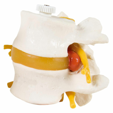 腰椎2交連モデル