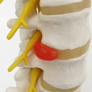 背側椎間板ヘルニア