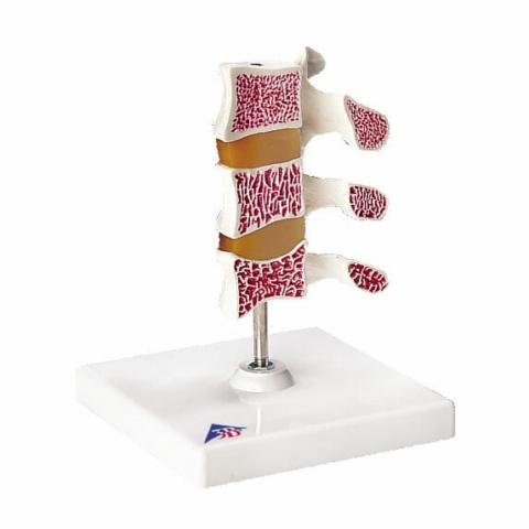骨粗鬆症モデル,3段型