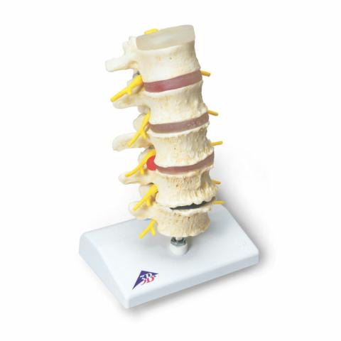 椎間板ヘルニアと変形性脊椎症モデル