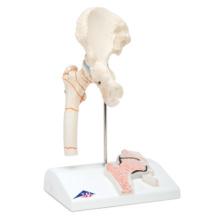 大腿骨骨折モデル