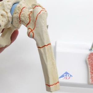 骨折の例を赤線で表示