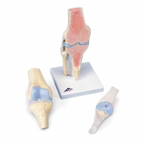 膝の関節断面,3分解モデル