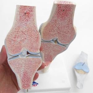 膝関節の断面