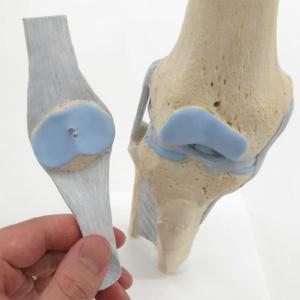靭帯付きの膝蓋骨の取り外し