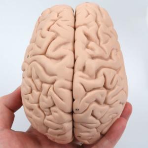 脳:上側より