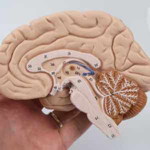 右脳:断面