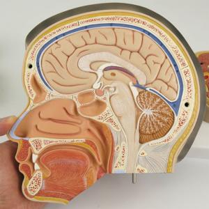 右半頭の断面