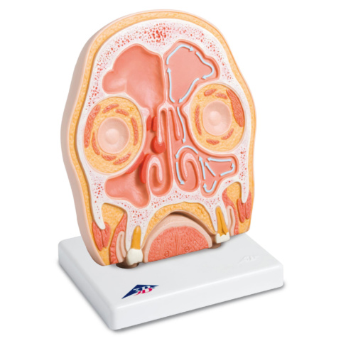 副鼻腔炎,頭部前額断面モデル