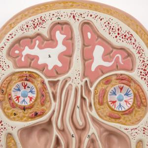 前額断面:脳・眼窩