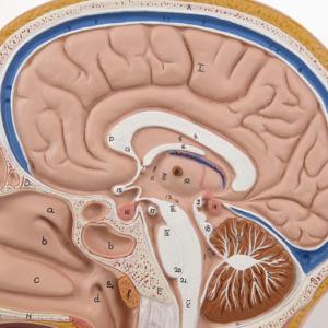 正中矢状断面:脳