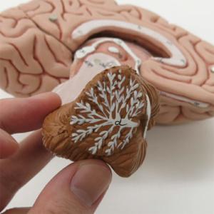 小脳を取り外せます
