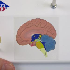 同様に色分けされた人の脳