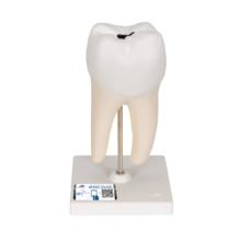 下顎大臼歯(2根)モデル