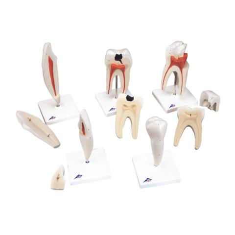 歯のシリーズ,8倍大モデルセット