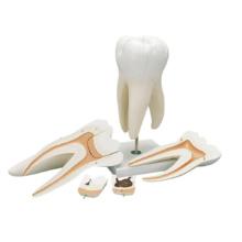 上顎大臼歯(3根),15倍大・5分解ジャイアントモデル