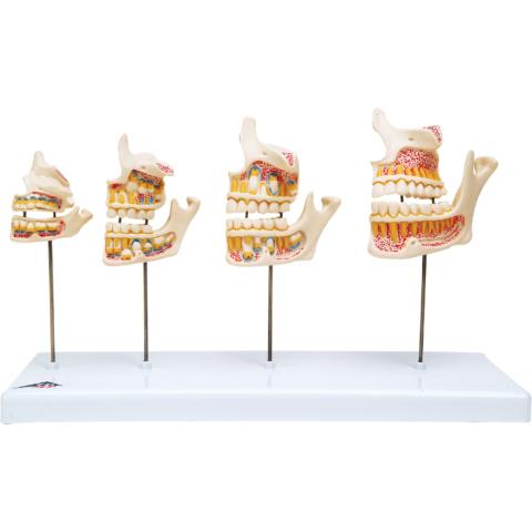 歯の成長過程モデル,実物大