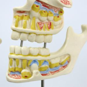 5才児(乳歯,永久歯の形成)