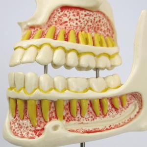 成人(永久歯の生え揃い)