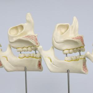 背面では上顎洞などを確認できます
