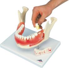 歯と歯茎の疾患モデル