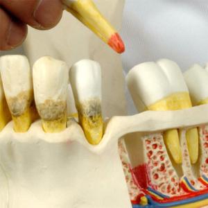 歯槽骨の吸収や歯根の炎症を表示