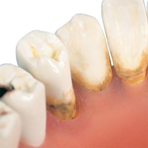 歯垢,歯石をリアルに再現