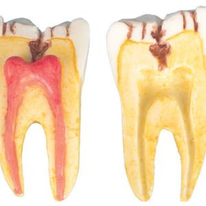 第1大臼歯:裂溝齲蝕を表示